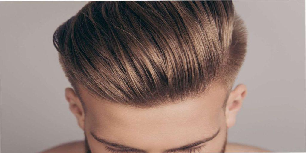 Trapianto di capelli e microinnesti come soluzione contro l'alopecia